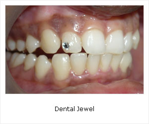 Dental jewel